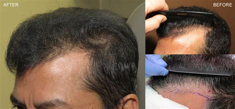 temple hair transplantation fue hair transplantation before and after pictures dr