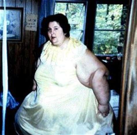 ожирение при почечной недостаточности