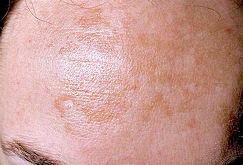 skin problems skin disorders pictures posters news and on your pursuit hobbies