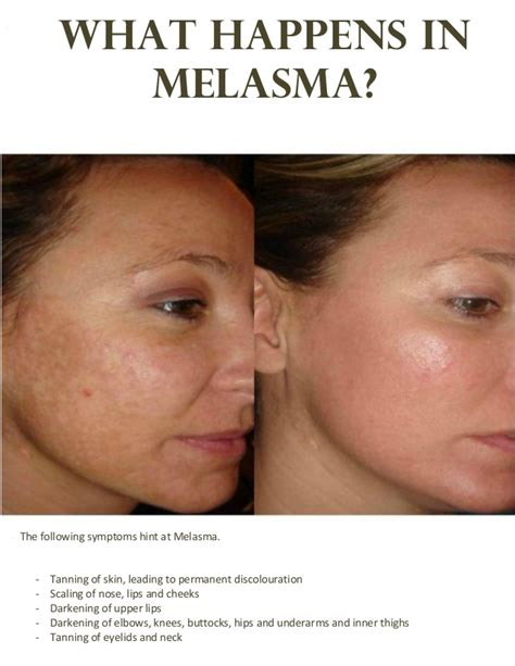 Top Treatment The Best Treatment For Melasma