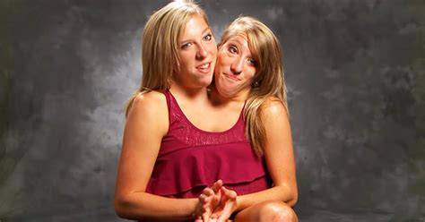 conjoined twins abby  brittany hensel hired  math