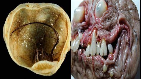 10 imagenes mas asquerosas 9 cosas asquerosas encontradas en el cuerpo humano