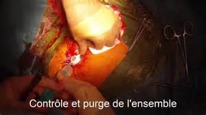 port a cath jugular vein way with echo