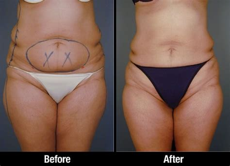 lipo after c section 21 best images about abdominal waist liposuction on
