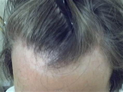 natural hair styles for receding hair line frontal fibrosing alopecia a woman s receding hairline