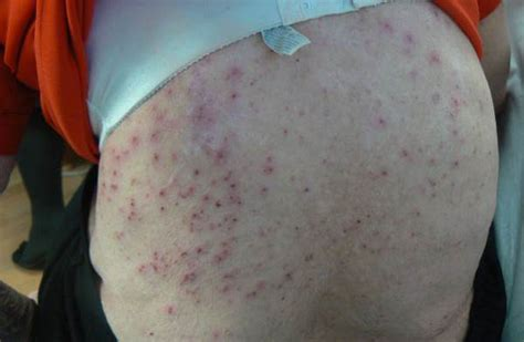 itchy rash after c section features the clinical advisor