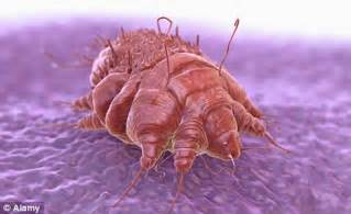 Where Does Bed Bugs Come From Queen S Guards Invaded By A Scabies Outbreak Military