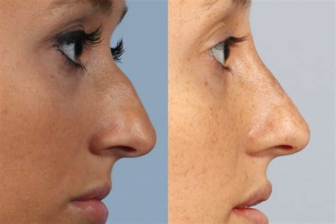 with snout nose shaping with surgery or nose filler dr brett kotlus cosmetic oculoplastic