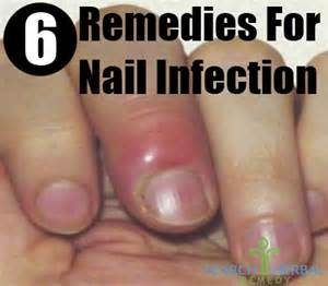 paronychia home treatment nail infection herbal remedies treatments and