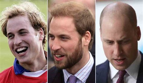 jobs in hair transplant technicianjobs london heir today gone tomorrow prince william s barnet through