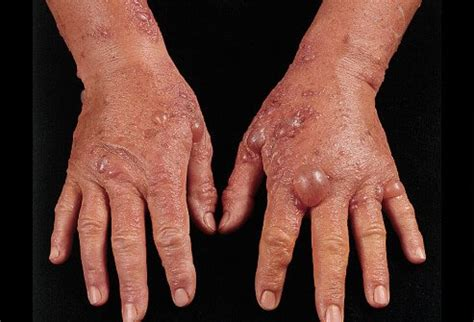 allergy skin disorders reactions rashes  treatments
