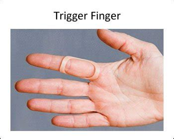 8 best splints for trigger use an oval 8 to treat trigger finger