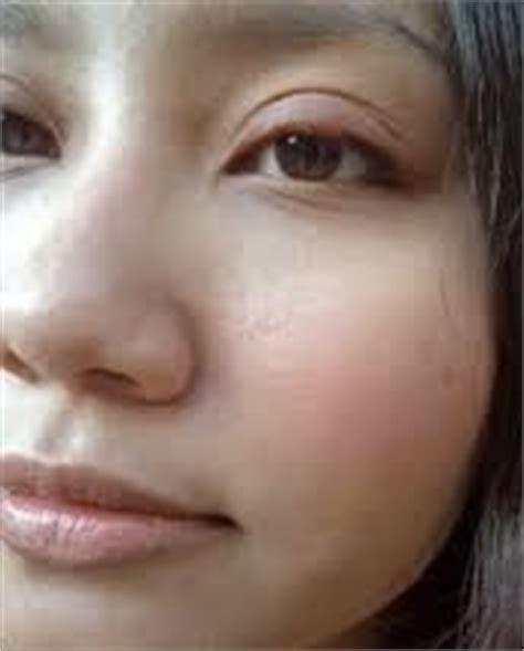 Obat Mata Bintitan Bagian Bawah obat benjolan pada kelopak mata
