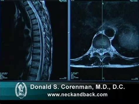 Anatomy of the Thoracic Spine   Spine Anatomy   Colorado