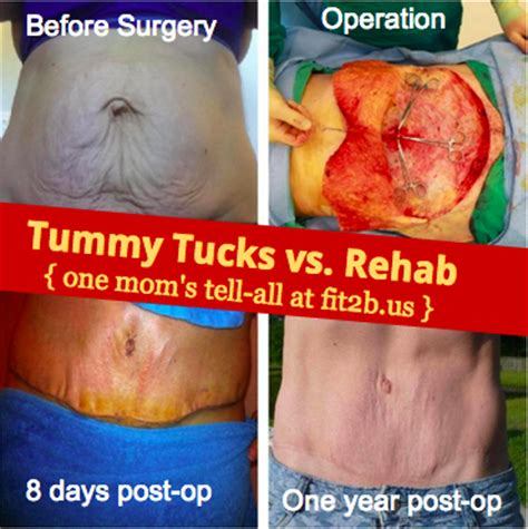 can i have a tummy tuck during c section diastasis and tummy tucks vs abdominal rehab