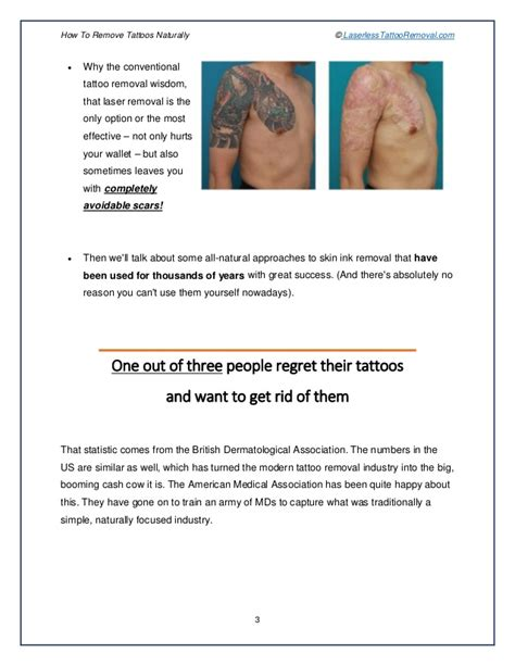 fast tattoo removal at home 100 best removal without 28