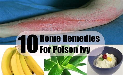 poison home remedies treatments cures