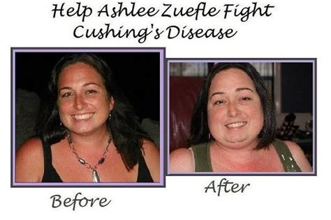cushings disease fundraiser by amanda yarborough help ashlee fight cushings disease