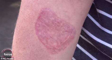 tattoo healing burning sensation nz woman has skin graft after tattoo removal goes wrong