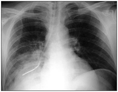 Lung Exclusive L 1 the placement of nasogastric cmaj