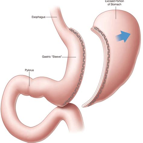gastric bypass surgery diagram procedures gt laparoscopic sleeve gastrectomy michigan