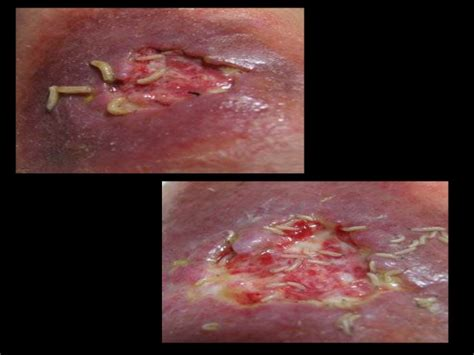 bed sore pictures bed sores classification and management