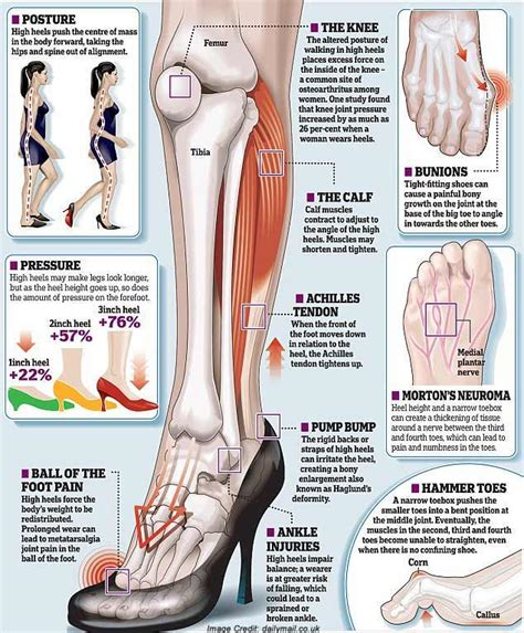 how to wear high heels 10 reasons you should not wear high heels anymore