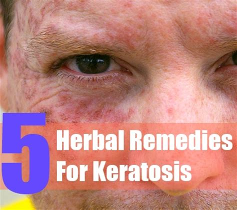 5 herbal remedies for keratosis how to treat keratosis