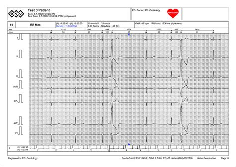 Holter Monitor Report Template