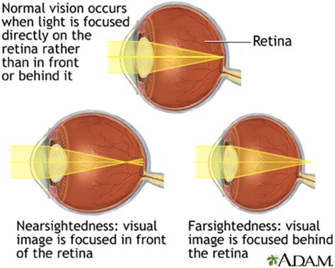 layout definicion yahoo normal nearsightedness and farsightedness medlineplus