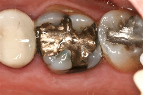 How To Detox Metals With Metal Fillings Still In by You Re Being Poisoned By Your Dental Fillings Mentor
