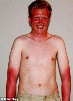 Komik Crimson Prince Fulset sunburn fail hapless sunbathers sunblock for sun and ended up embarrassing results daily