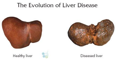liver failure stages stem cell therapy for liver disease cirrhosis
