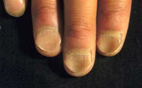Flat Nail Beds Medical Pictures Info Koilonychia