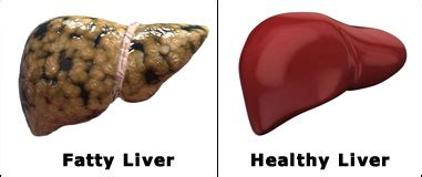 How Can I Detox My Liver And Kidneys by How Can I Get Rid Of My Fatty Liver Home Solutions For A