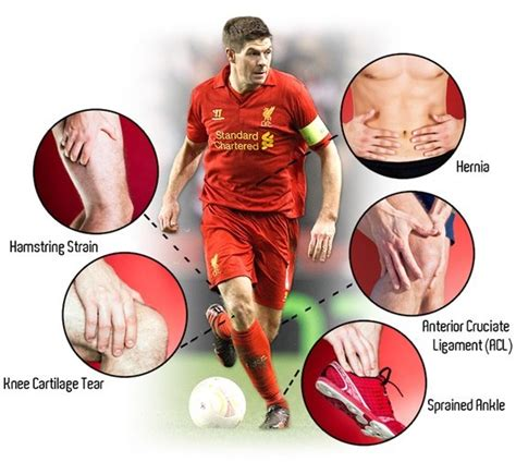 7 Common Style Related Injuries by What Are The Common Injuries To Football Soccer Players