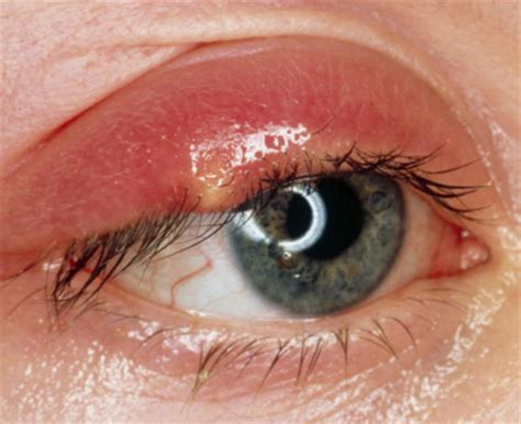 bump on s eyelid bump on eyelid lower middle white itchy how to get rid of it treatment