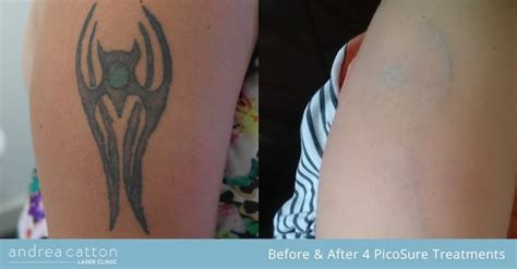 places to remove tattoos how does the picosure laser work to remove tattoos