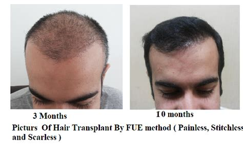 how important right hairstyle transplant hair transplant in delhi cost life style by modernstork com