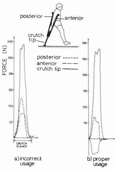 swing through gait fig 5 uniaxial forces measured along the axillar o p