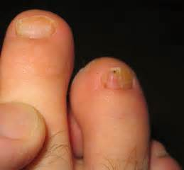 got funky toes maybe you ve got a toenail fungus trust
