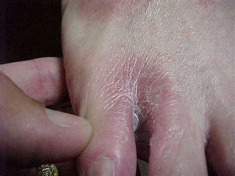 Detox Rash On Foot by It Is A Big Mistake To Think That That There Is A Candida