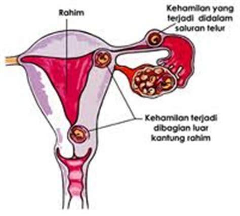 Buku Kehamilan Ektopik Di Luar Kandungan 1 calon dokter kehamilan ektopik dan abortus