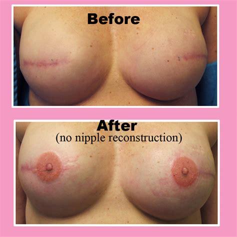 nipple tattoo reconstruction nz kanceri reporter al