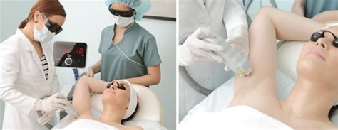diode laser hair removal technique laser hair removal aesthetic institute of the philippines