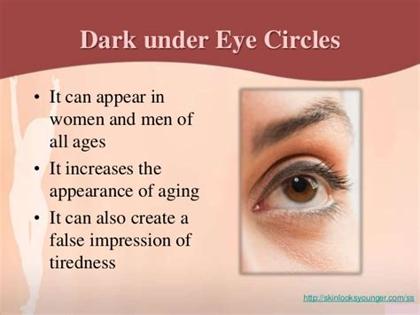4 Things That Cause Your Eye Circles And Puffiness what causes circles your