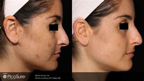 laser acne scar removal winston salem nc carolina laser