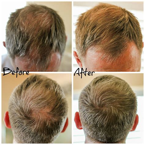 before and after thinning mens haircut hair thinning and hair loss what s a man to do thin