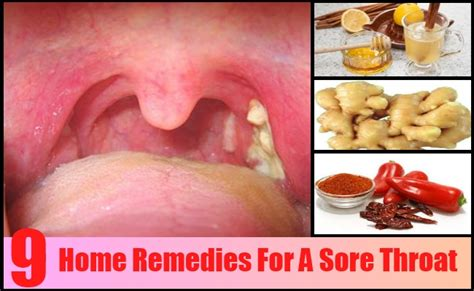 9 top home remedies for a sore throat treatments