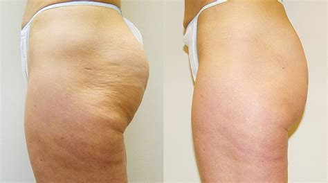 cellulite best treatment cellulite treatment your top questions answered